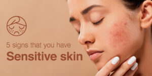 5 signs you have sensitive skin
